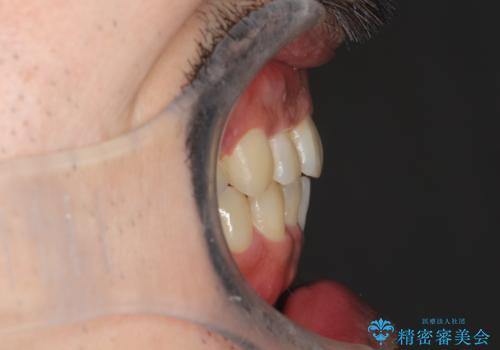 出っ歯の抜歯矯正 裏側ワイヤーによる目立たない矯正の治療後