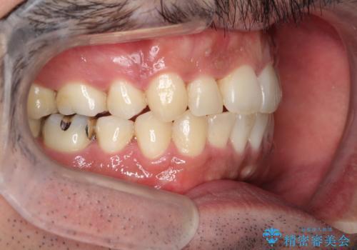 出っ歯の抜歯矯正 裏側ワイヤーによる目立たない矯正の症例 治療後