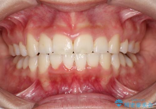 前歯のがたつき・出っ歯 ワイヤーによる抜歯矯正の治療後