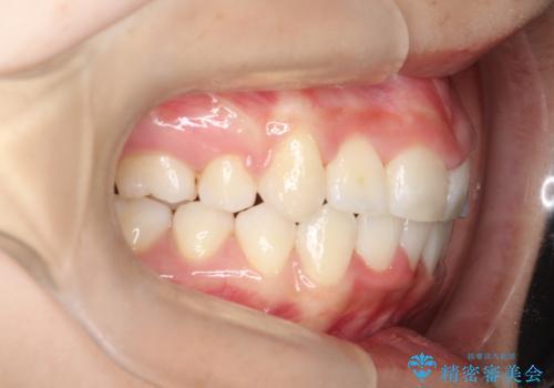 前歯のがたつき・出っ歯 ワイヤーによる抜歯矯正の症例 治療後