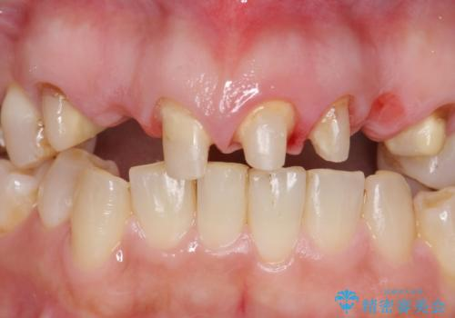 オールセラミッククラウン 前歯の被せ物を綺麗にの治療中