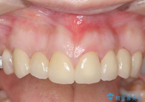 オールセラミッククラウン 前歯の被せ物を綺麗にの治療後