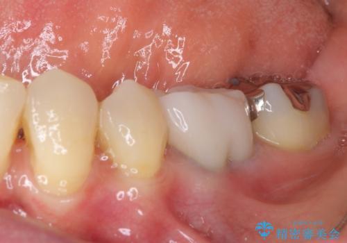 話しにくく腫れやすい前歯のブリッジ 使用感の良いオールセラミックブリッジにの治療後