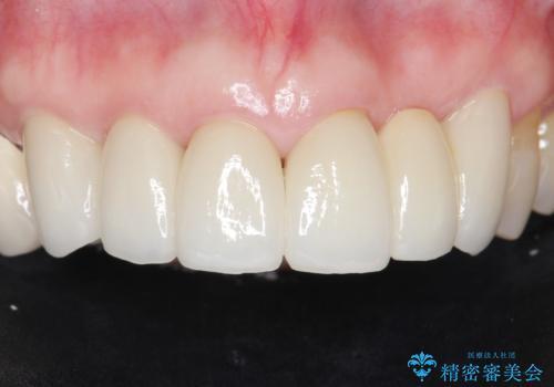 20年前に被せた前歯をやりかえたい 60代女性の症例 治療後