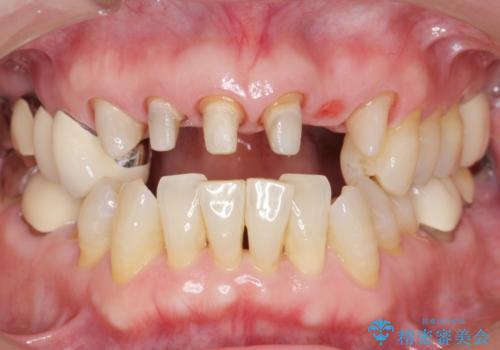 20年前に被せた前歯をやりかえたい 60代女性の治療中
