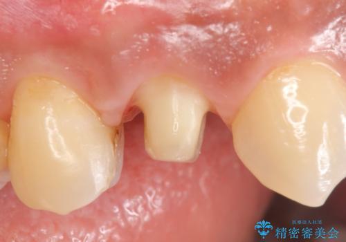 オールセラミッククラウン 歯茎の腫れが引かない歯の治療の治療中