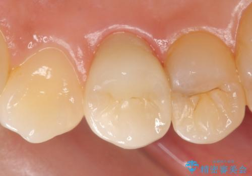 オールセラミッククラウン 歯茎の腫れが引かない歯の治療の治療後