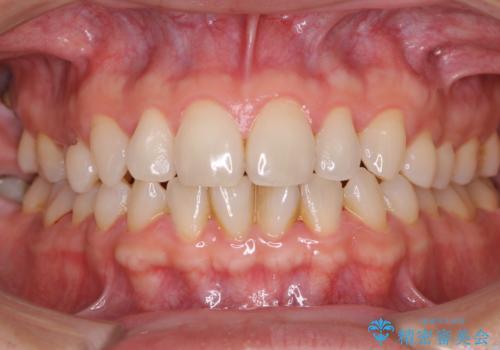 40年ぶりの歯科医院へ来院の症例 治療前