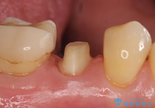 オールセラミッククラウン 神経が死んでいる歯の治療の治療中