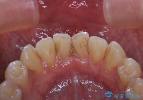 40年ぶりの歯科医院へ来院の治療前