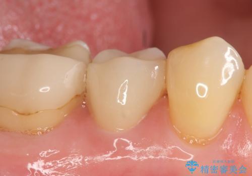 オールセラミッククラウン 神経が死んでいる歯の治療の治療後