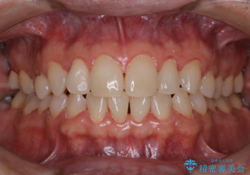 40年ぶりの歯科医院へ来院の症例 治療後