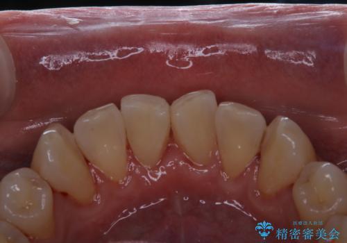 40年ぶりの歯科医院へ来院の治療後