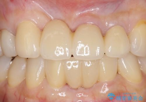 前歯のブリッジ オールセラミッククラウン 歯根が割れてしまった歯の治療の治療後