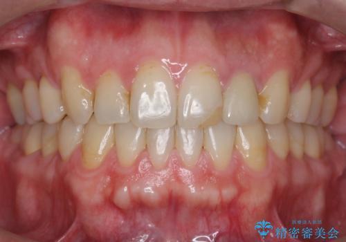 出っ歯 すれ違い咬合の改善 の治療後