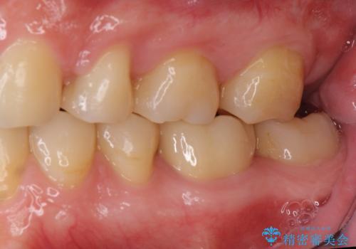 出っ歯 すれ違い咬合の改善 の症例 治療後