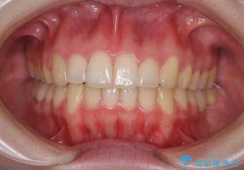 インプラント治療とインビザライン矯正治療 総合歯科治療の症例 治療後
