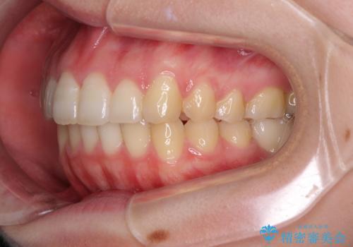 インプラント治療とインビザライン矯正治療 総合歯科治療の治療後