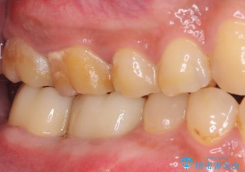 骨の中にまで及んだ深い虫歯 歯周外科処置を用いた補綴治療の治療後