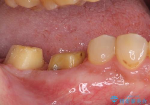 骨の中にまで及んだ深い虫歯 歯周外科処置を用いた補綴治療の治療中