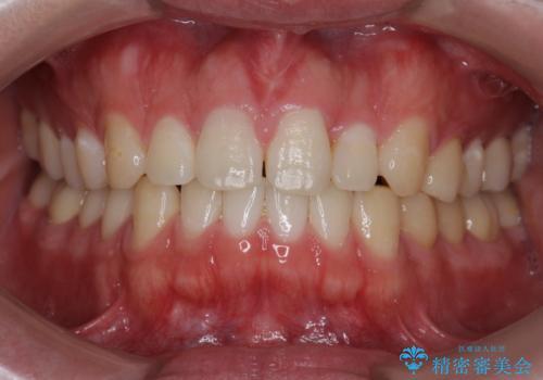 矯正後、オフィスホワイトニングで歯を白くし、さらに口元を爽やかに。の症例 治療前