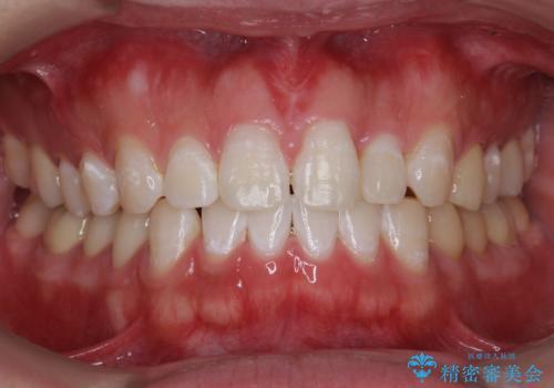 矯正後、オフィスホワイトニングで歯を白くし、さらに口元を爽やかに。の症例 治療後