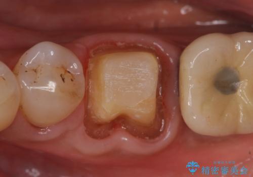 オールセラミッククラウン 咬むと痛む奥歯の根管治療の治療中