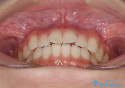 気になる前歯を整えたい インビザライン・ライトでの矯正治療の治療前