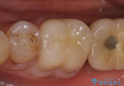 オールセラミッククラウン 咬むと痛む奥歯の根管治療の治療後
