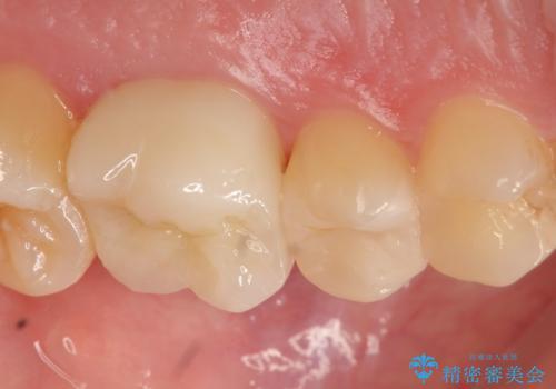 セラミック治療 痛くて咬めない奥歯の治療の治療後