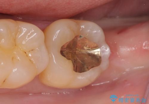 PGA(ゴールド)インレー 冷たいものがしみる歯の治療の症例 治療後