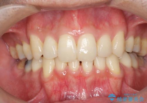 加齢による歯の黄ばみを、オフィスホワイトニングで白く。の治療前