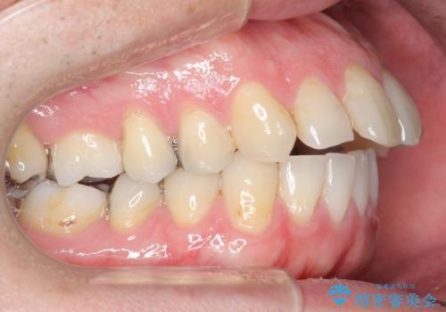 出っ歯 すれ違い咬合の改善 の治療前