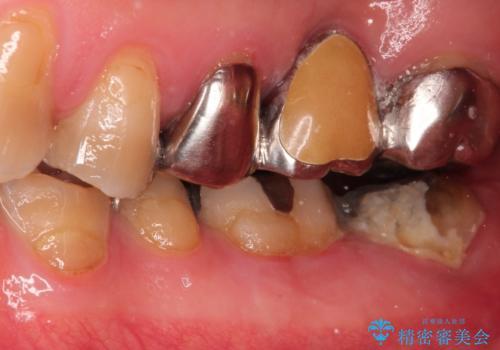 【ヘミセクション】なんとか残したい、割れた奥歯。の治療前