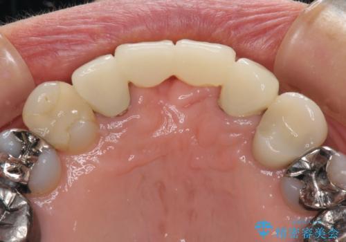 話しにくく腫れやすい前歯のブリッジ 使用感の良いオールセラミックブリッジにの治療前