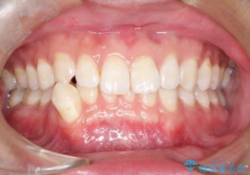 前歯がガタガタ インビザラインによる矯正の症例 治療前