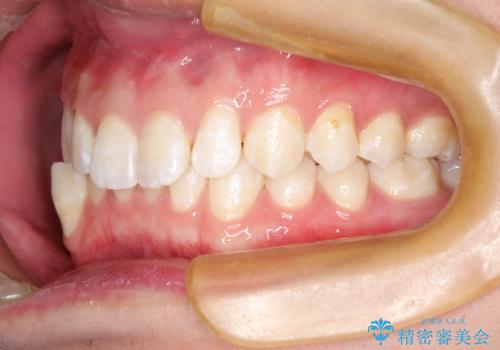 前歯がガタガタ インビザラインによる矯正の治療前