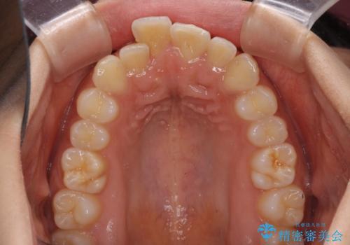 短期間での歯列矯正 ワイヤー矯正であっという間にの治療前