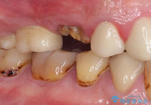 折れてしまった歯 インプラントによる補綴治療の治療前