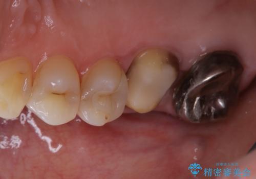 歯ぐきにニキビのようなものができた:原因から改善、被せ物までの治療中