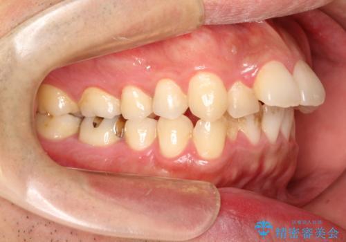 出っ歯の抜歯矯正 裏側ワイヤーによる目立たない矯正の症例 治療前