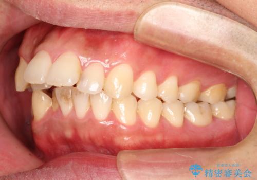 出っ歯の抜歯矯正 裏側ワイヤーによる目立たない矯正の治療前