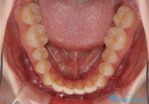 気になる前歯をインビザラインで綺麗にの治療前