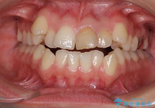 八重歯の抜歯矯正 費用を抑えた矯正装置の症例 治療前