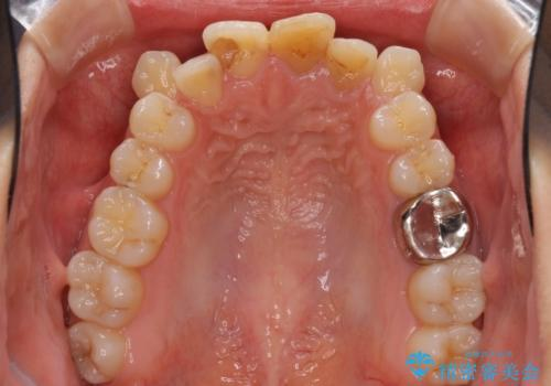 八重歯の抜歯矯正 費用を抑えた矯正装置の治療前