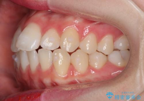 前歯のがたつき 乳歯を抜かずに矯正の治療中