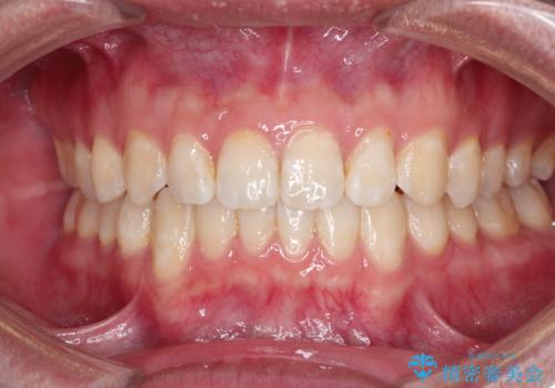 前歯がガタガタ インビザラインによる矯正の症例 治療後