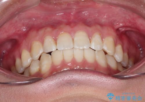 前歯がガタガタ インビザラインによる矯正の治療後