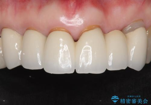 20年前に被せた前歯をやりかえたい 60代女性の症例 治療前