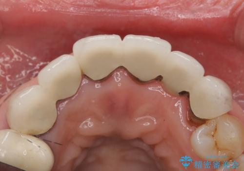 20年前に被せた前歯をやりかえたい 60代女性の治療前